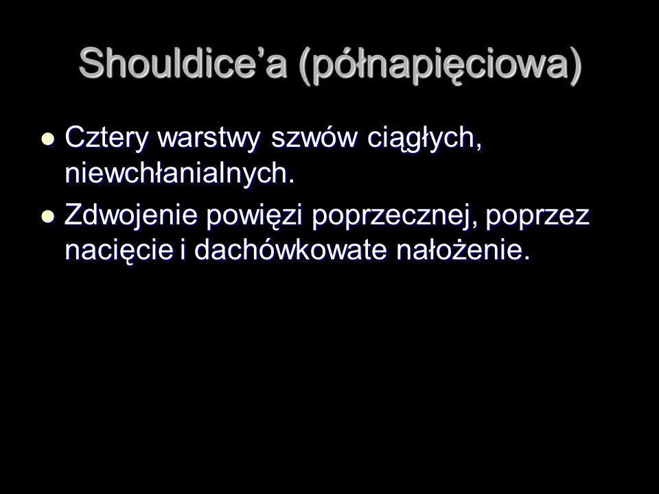 Shouldice'a (półnapięciowa)