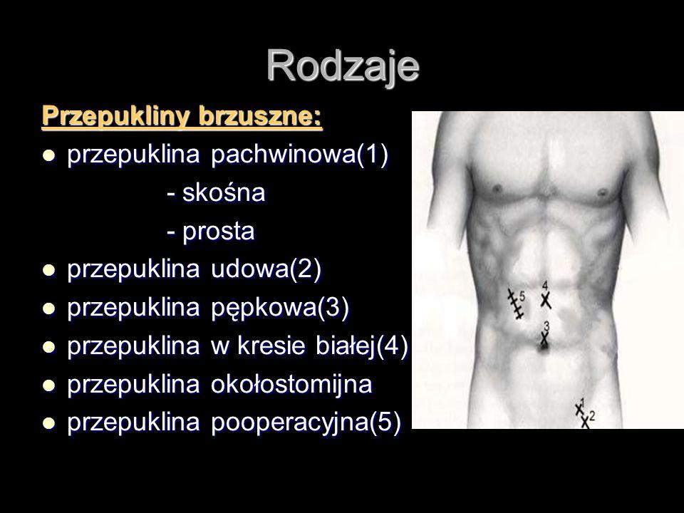 Rodzaje Przepukliny brzuszne: przepuklina pachwinowa(1) - skośna