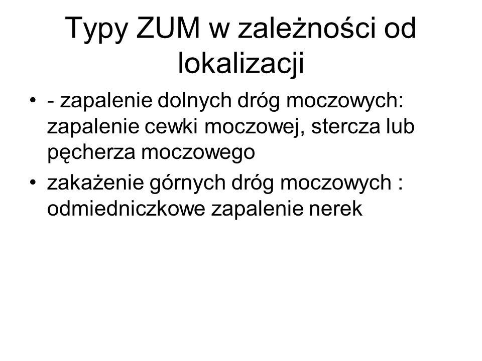 Typy ZUM w zależności od lokalizacji