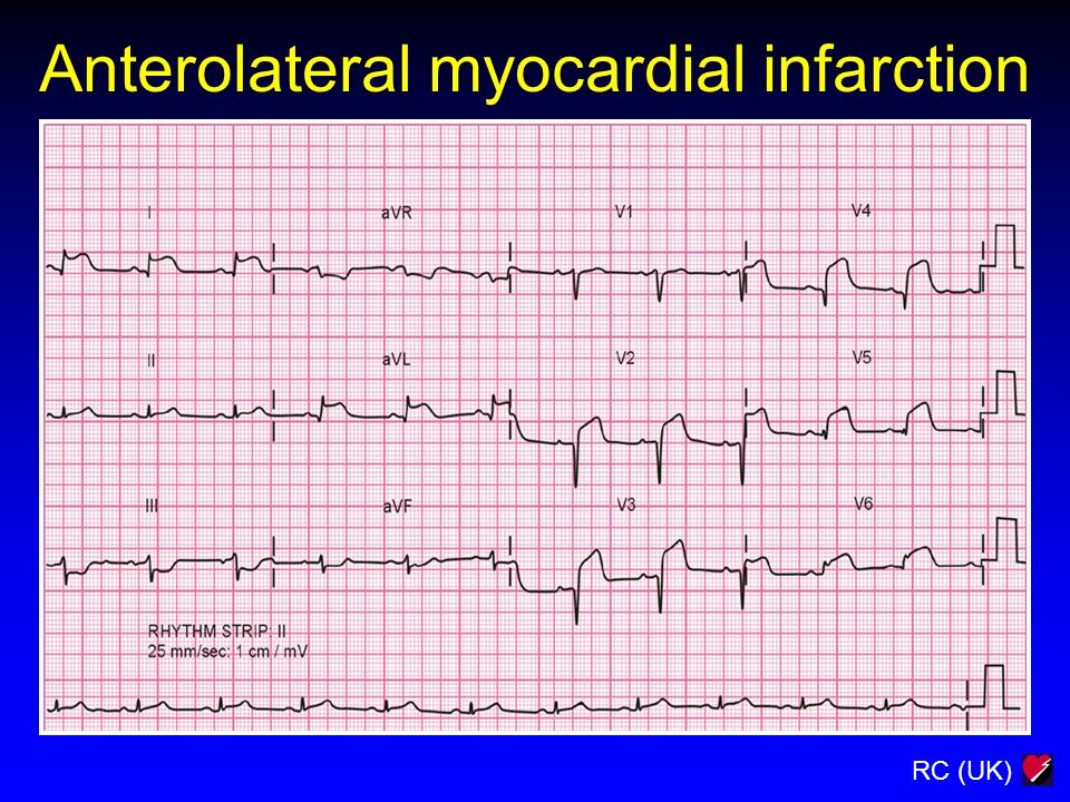 Anterolateral myocardial infarction