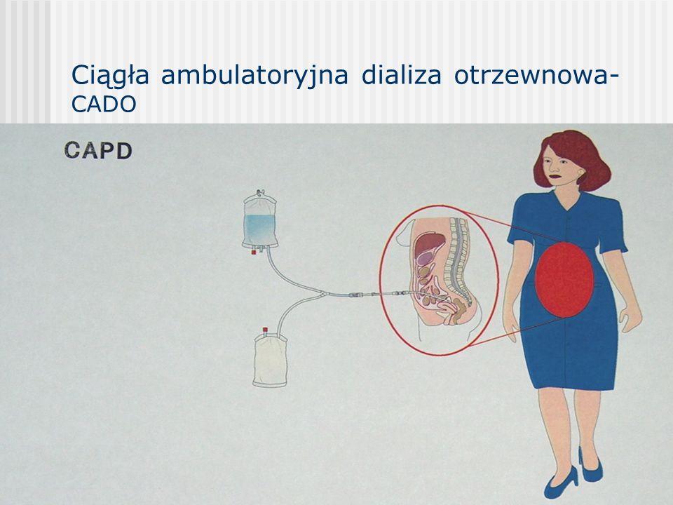 Ciągła ambulatoryjna dializa otrzewnowa-CADO