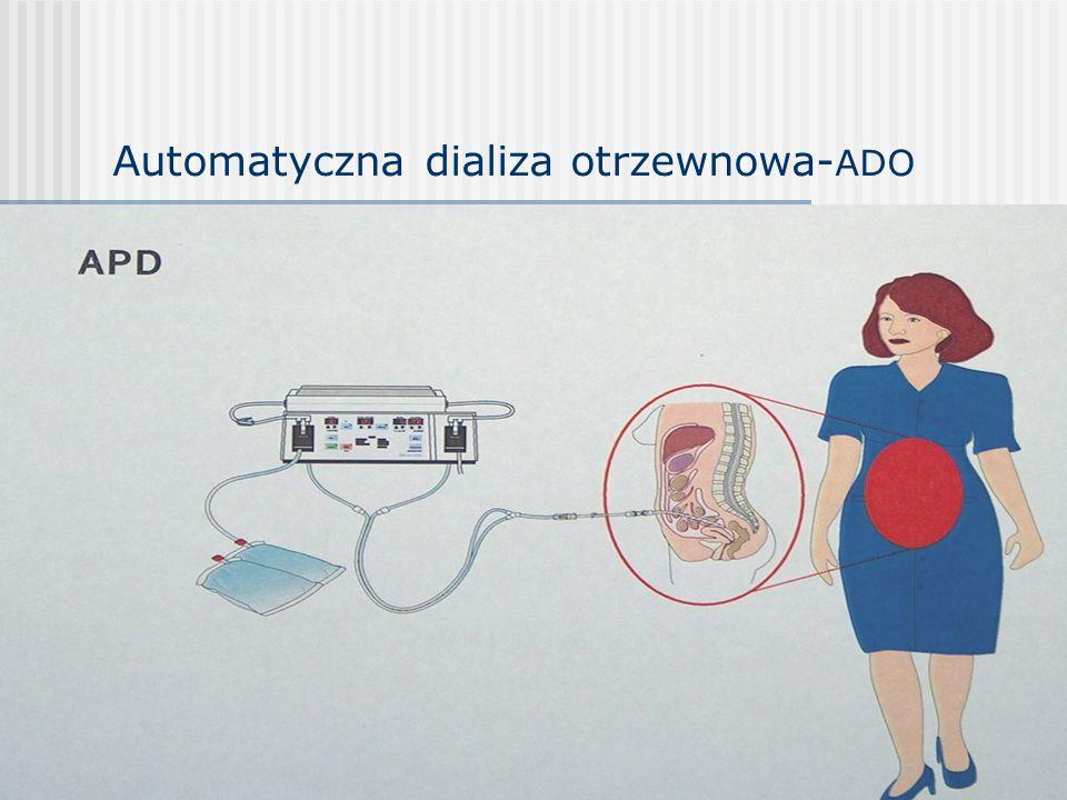 Automatyczna dializa otrzewnowa-ADO
