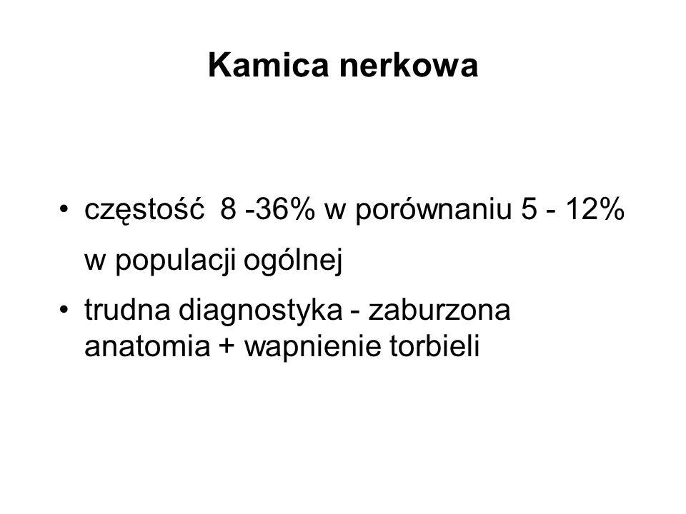 Kamica nerkowa częstość 8 -36% w porównaniu 5 - 12% w populacji ogólnej.