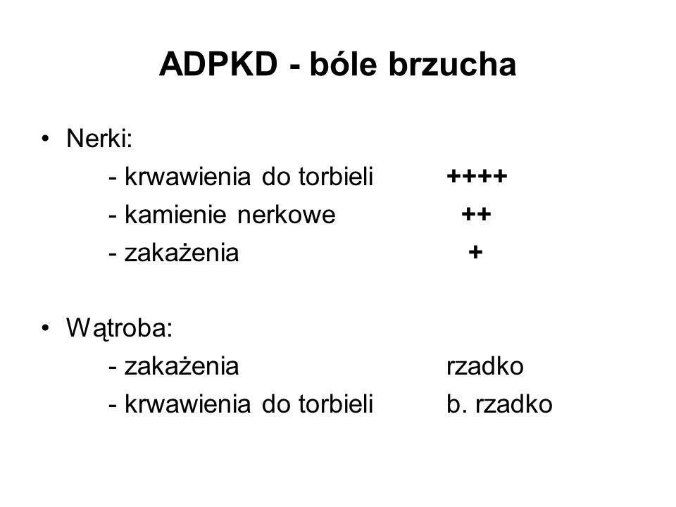 ADPKD - bóle brzucha Nerki: - krwawienia do torbieli ++++