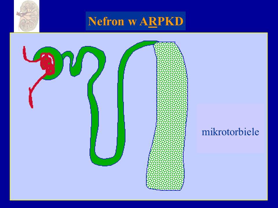 Nefron w ARPKD mikrotorbiele
