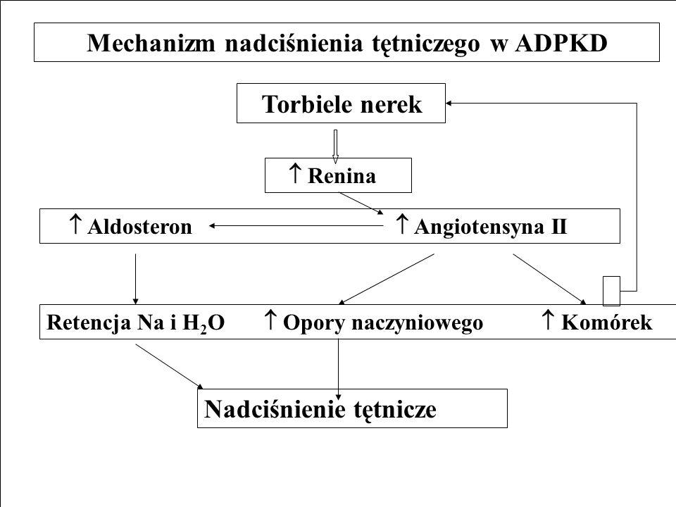 Mechanizm nadciśnienia tętniczego w ADPKD