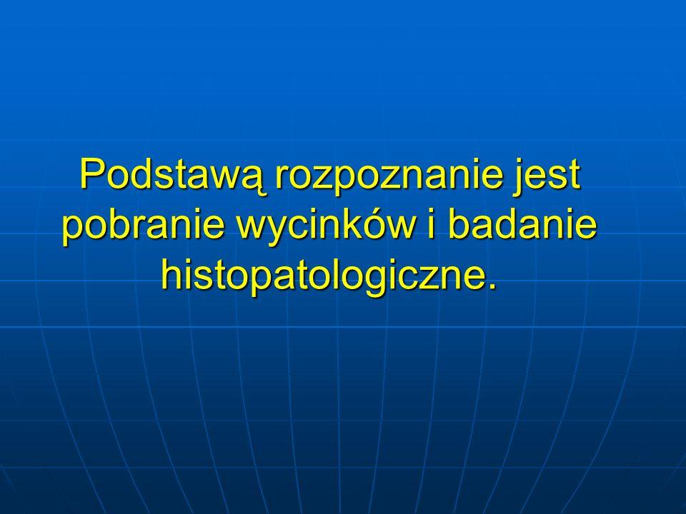 Podstawą rozpoznanie jest pobranie wycinków i badanie histopatologiczne.
