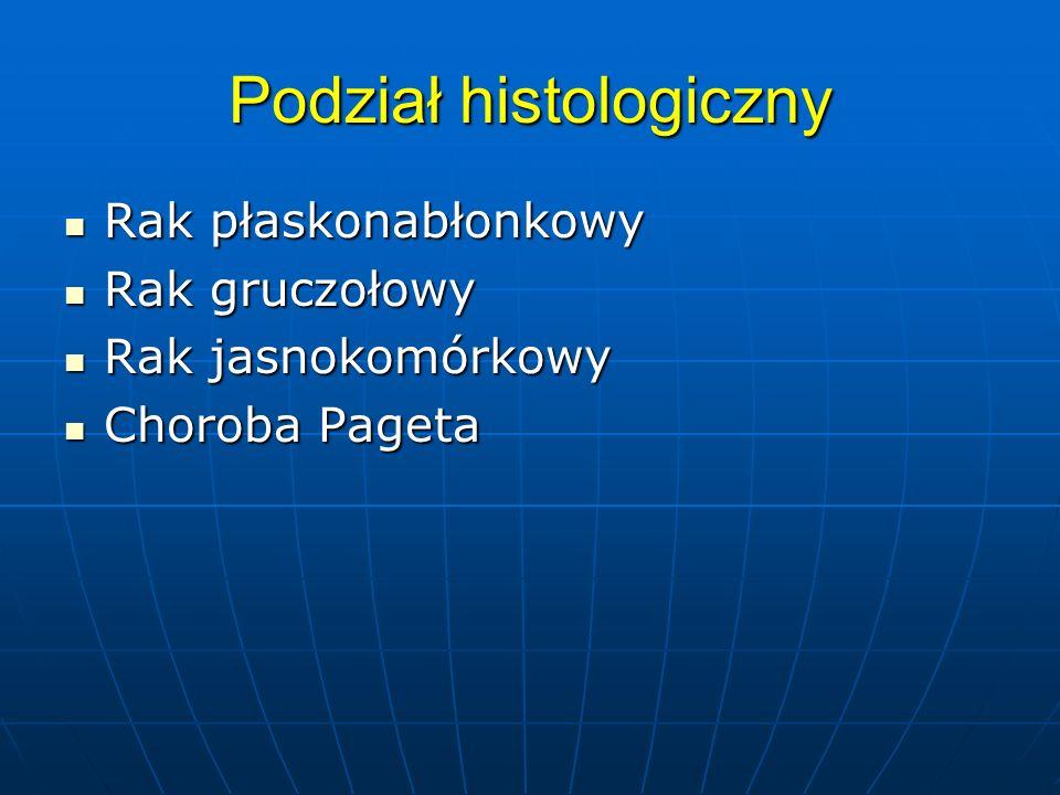 Podział histologiczny