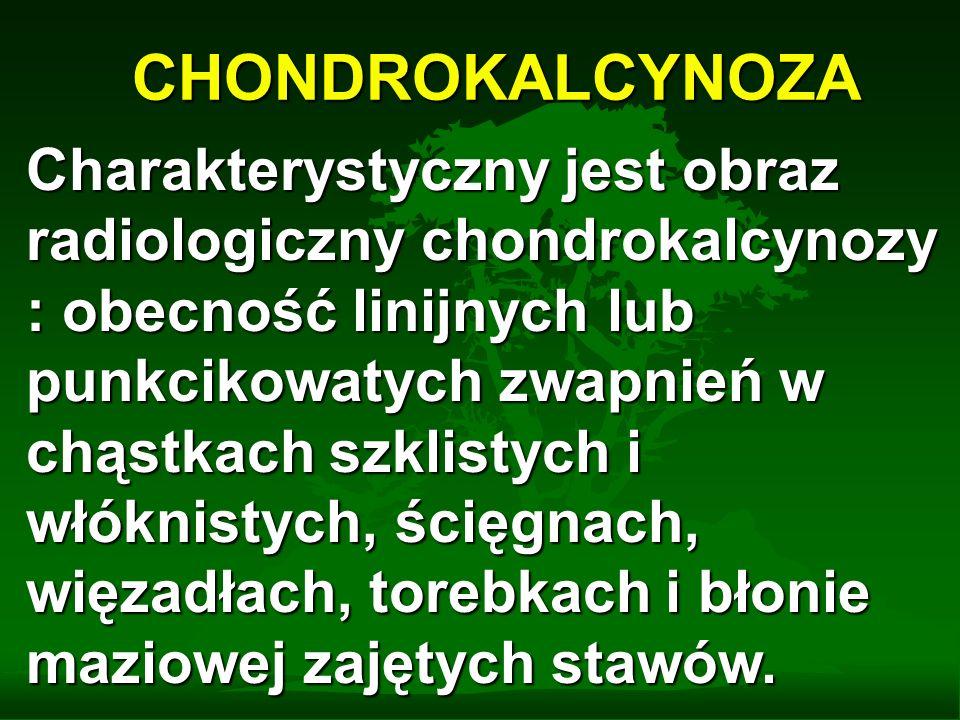 CHONDROKALCYNOZA