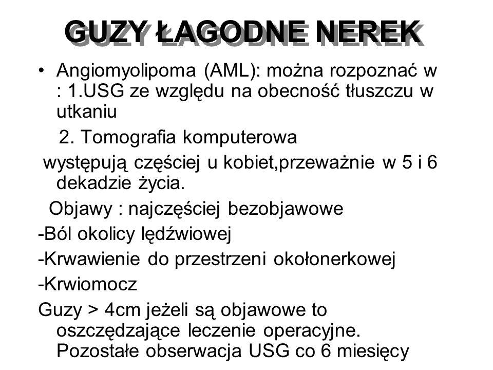 GUZY ŁAGODNE NEREK Angiomyolipoma (AML): można rozpoznać w : 1.USG ze względu na obecność tłuszczu w utkaniu.