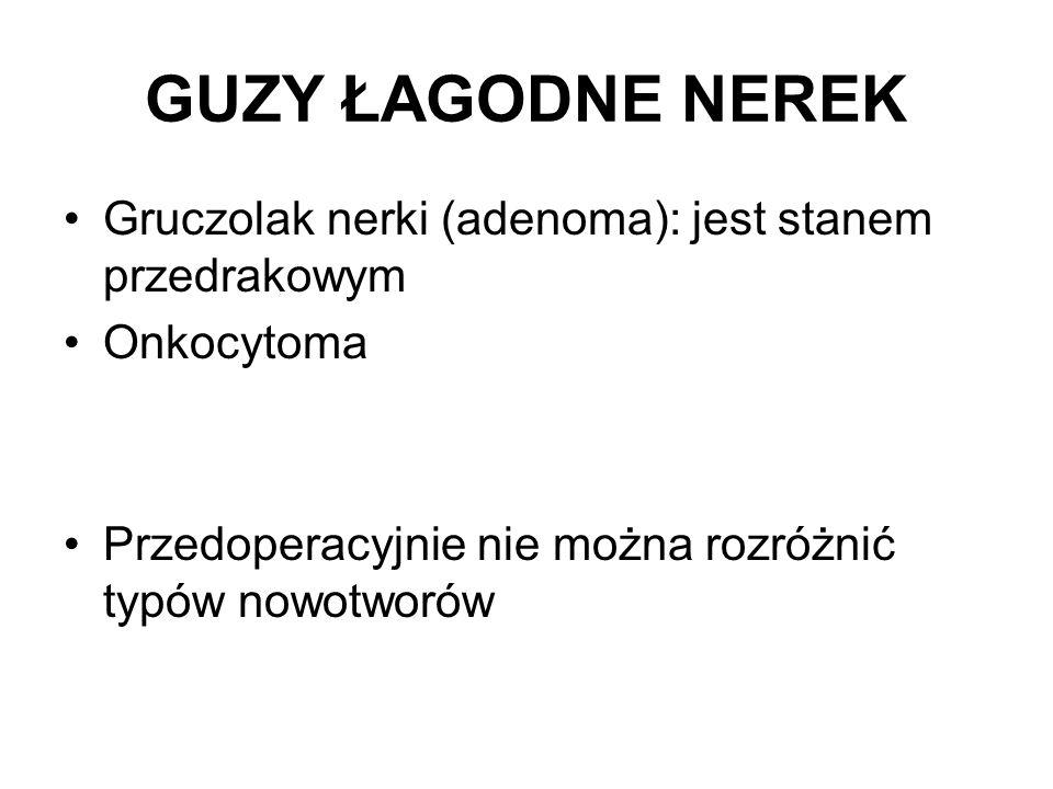 GUZY ŁAGODNE NEREK Gruczolak nerki (adenoma): jest stanem przedrakowym