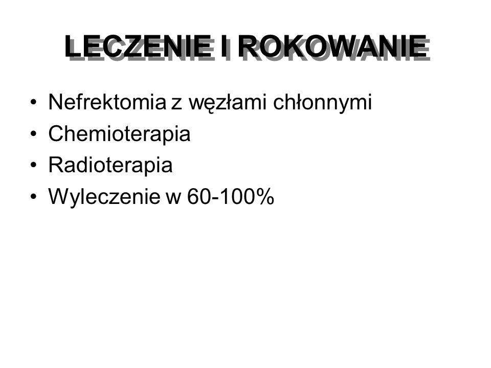 LECZENIE I ROKOWANIE Nefrektomia z węzłami chłonnymi Chemioterapia