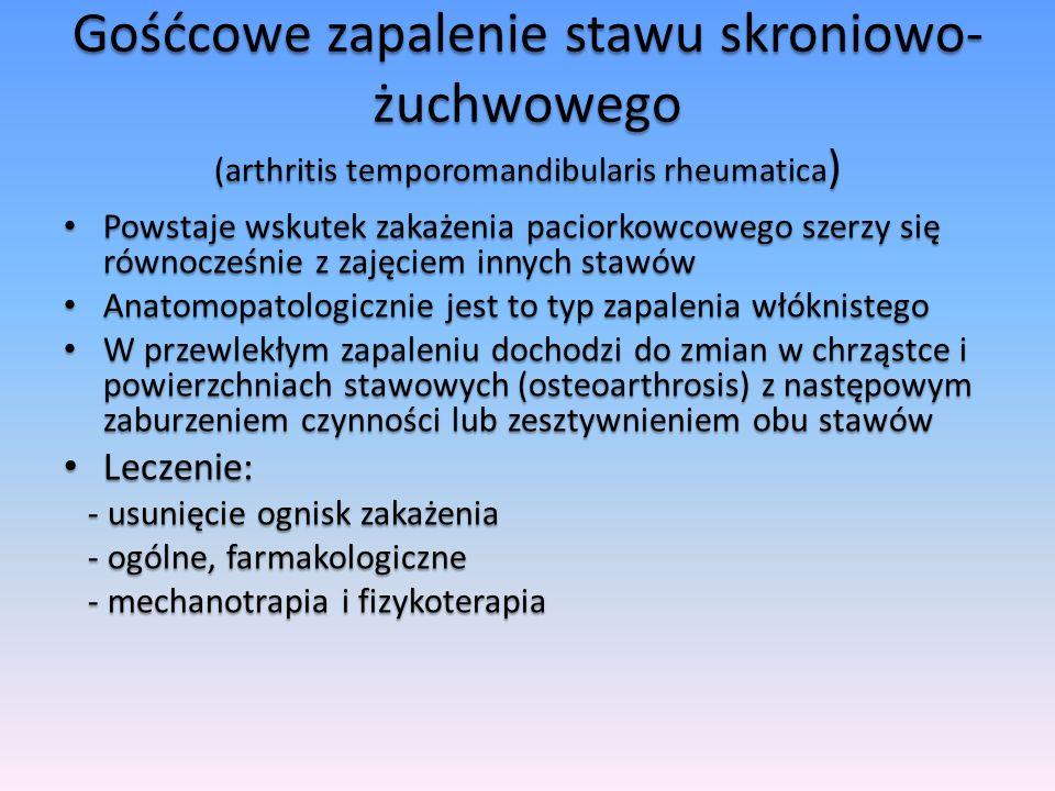 Gośćcowe zapalenie stawu skroniowo-żuchwowego (arthritis temporomandibularis rheumatica)
