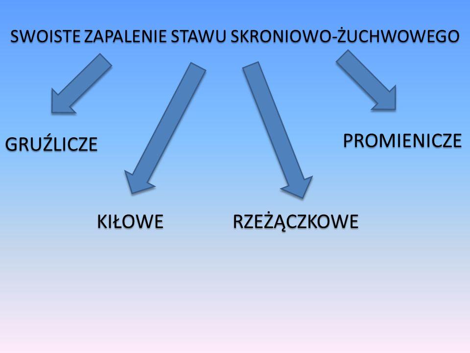 SWOISTE ZAPALENIE STAWU SKRONIOWO-ŻUCHWOWEGO