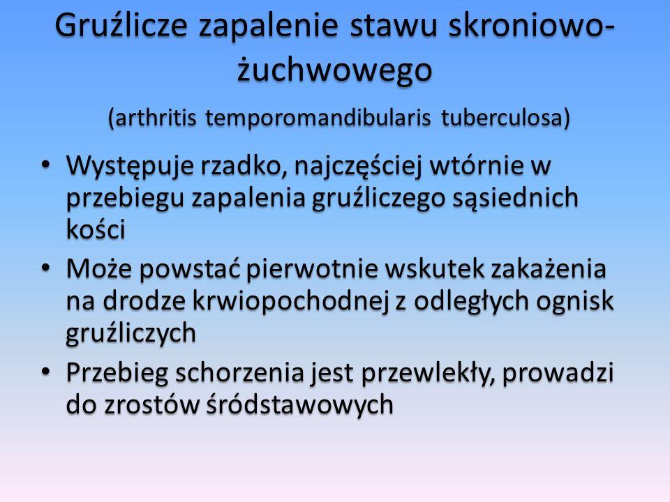 Gruźlicze zapalenie stawu skroniowo-żuchwowego (arthritis temporomandibularis tuberculosa)