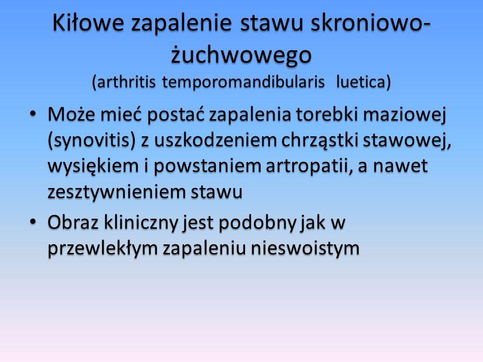 Kiłowe zapalenie stawu skroniowo-żuchwowego (arthritis temporomandibularis luetica)