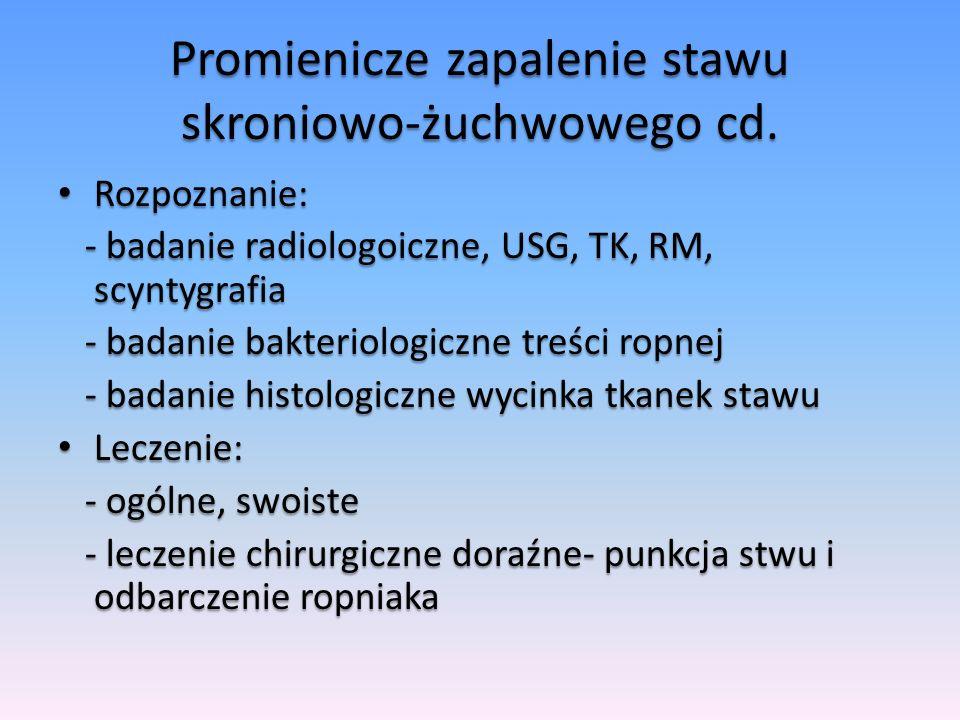Promienicze zapalenie stawu skroniowo-żuchwowego cd.