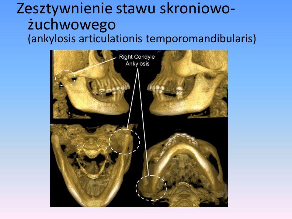 Zesztywnienie stawu skroniowo-żuchwowego (ankylosis articulationis temporomandibularis)