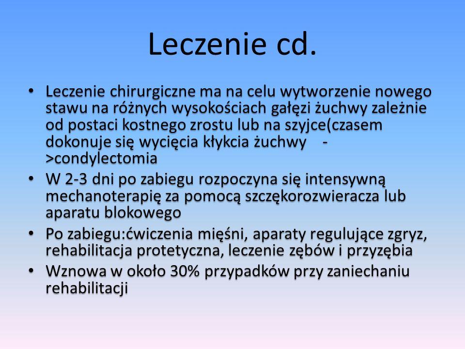 Leczenie cd.