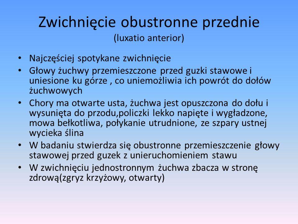 Zwichnięcie obustronne przednie (luxatio anterior)