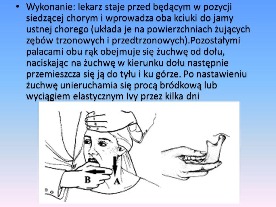 Wykonanie: lekarz staje przed będącym w pozycji siedzącej chorym i wprowadza oba kciuki do jamy ustnej chorego (układa je na powierzchniach żujących zębów trzonowych i przedtrzonowych).Pozostałymi palacami obu rąk obejmuje się żuchwę od dołu, naciskając na żuchwę w kierunku dołu następnie przemieszcza się ją do tyłu i ku górze.