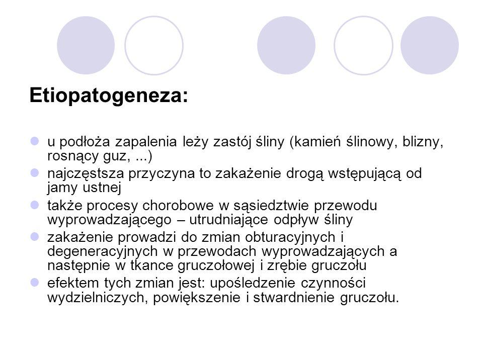 Etiopatogeneza: u podłoża zapalenia leży zastój śliny (kamień ślinowy, blizny, rosnący guz, ...)