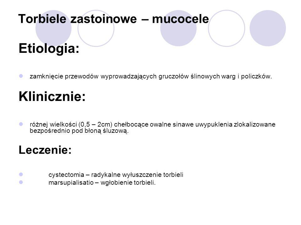 Torbiele zastoinowe – mucocele