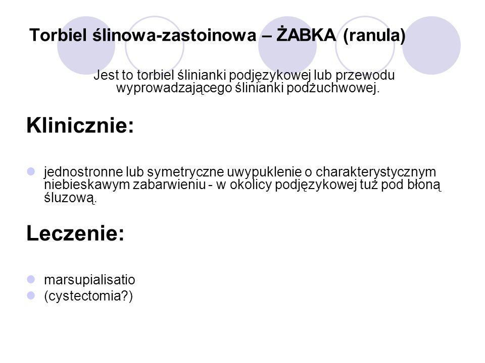 Torbiel ślinowa-zastoinowa – ŻABKA (ranula)