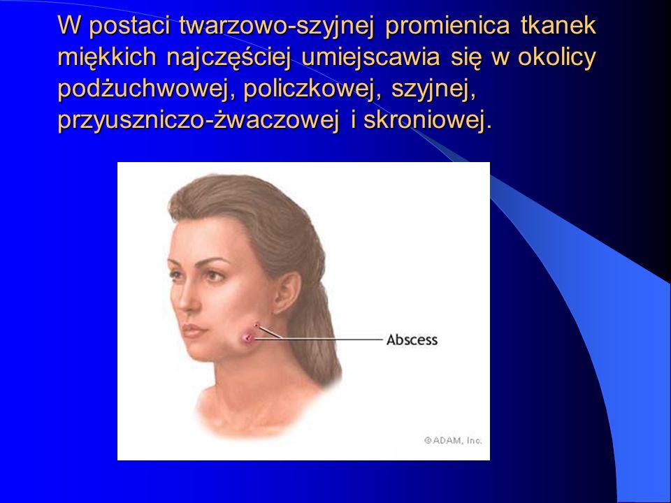 W postaci twarzowo-szyjnej promienica tkanek miękkich najczęściej umiejscawia się w okolicy podżuchwowej, policzkowej, szyjnej, przyuszniczo-żwaczowej i skroniowej.