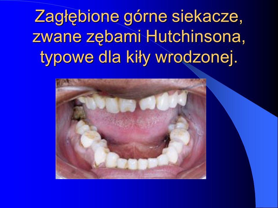 Zagłębione górne siekacze, zwane zębami Hutchinsona, typowe dla kiły wrodzonej.
