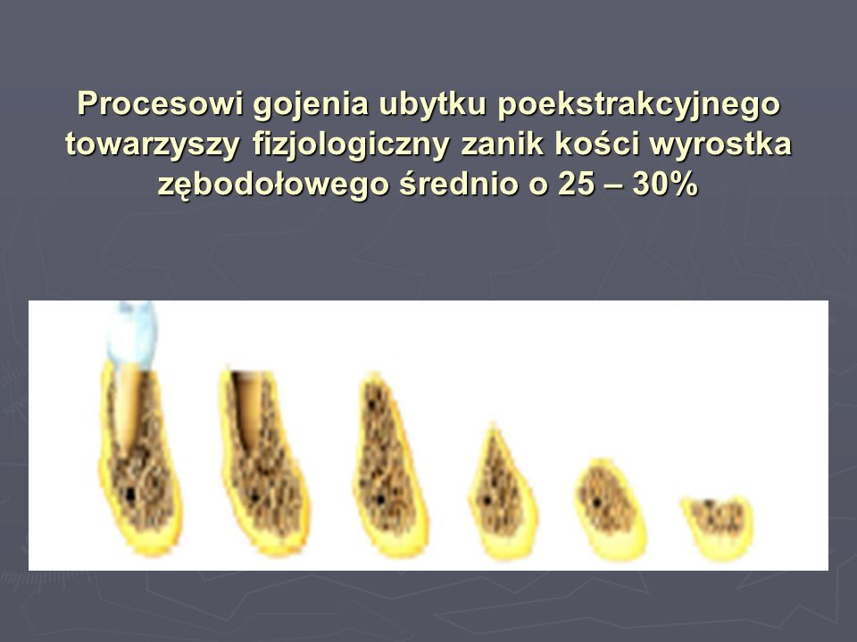 Procesowi gojenia ubytku poekstrakcyjnego towarzyszy fizjologiczny zanik kości wyrostka zębodołowego średnio o 25 – 30%