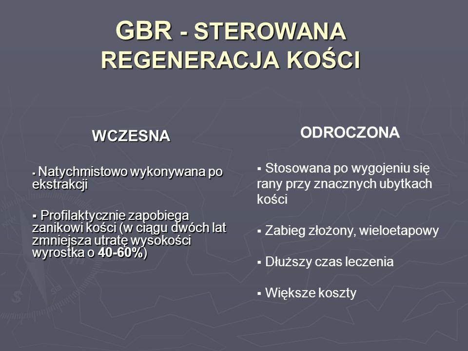 GBR - STEROWANA REGENERACJA KOŚCI