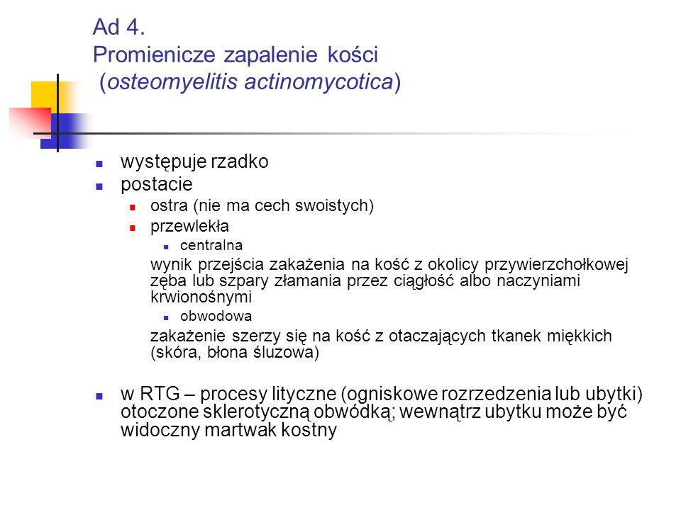 Ad 4. Promienicze zapalenie kości (osteomyelitis actinomycotica)