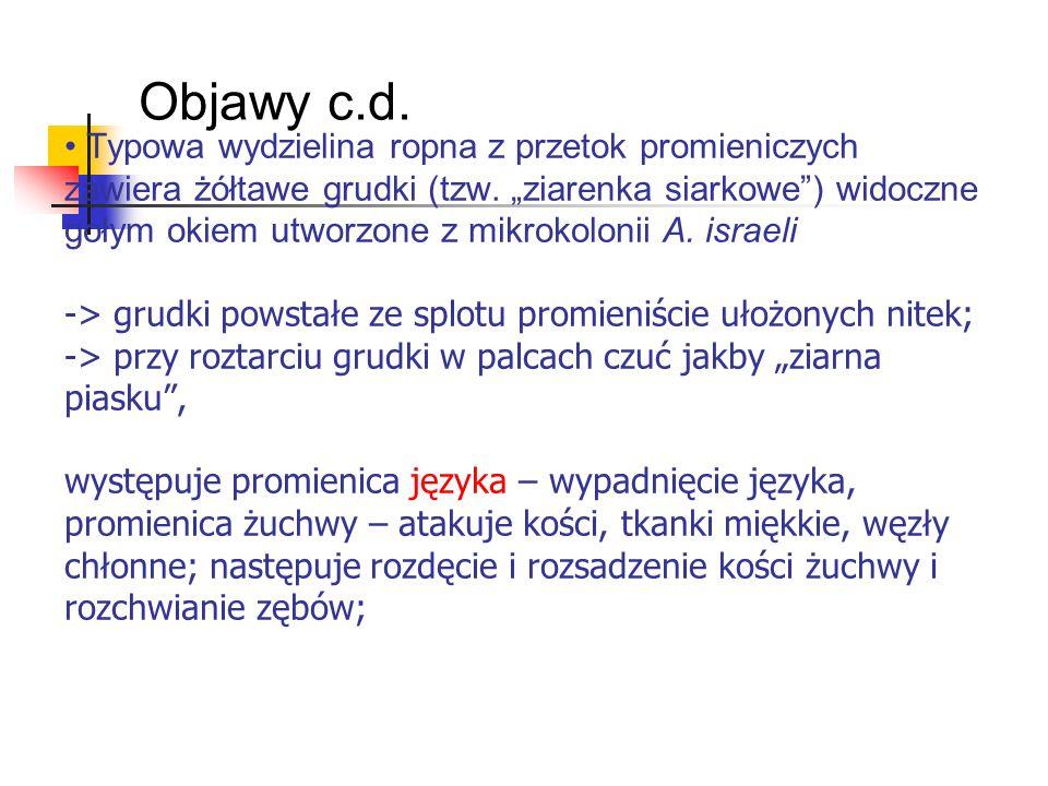 Objawy c.d.