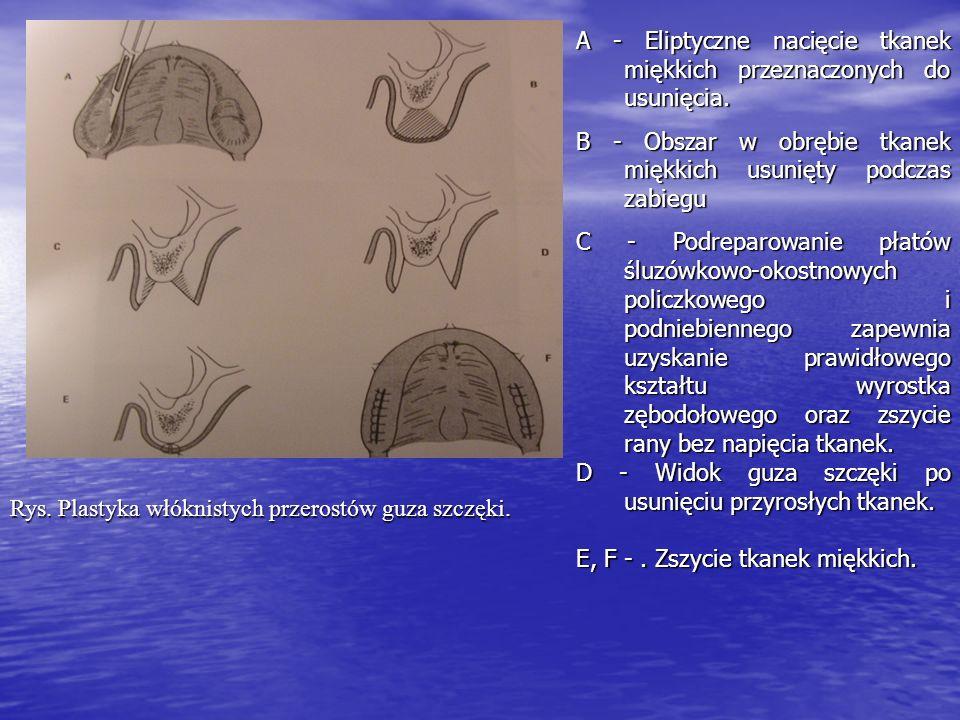 A - Eliptyczne nacięcie tkanek miękkich przeznaczonych do usunięcia.