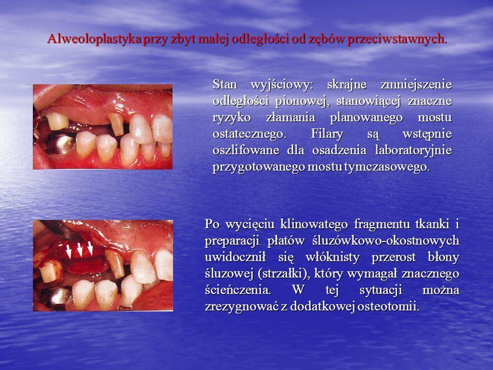 Alweoloplastyka przy zbyt małej odległości od zębów przeciwstawnych.