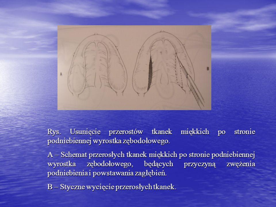 Rys. Usunięcie przerostów tkanek miękkich po stronie podniebiennej wyrostka zębodołowego.