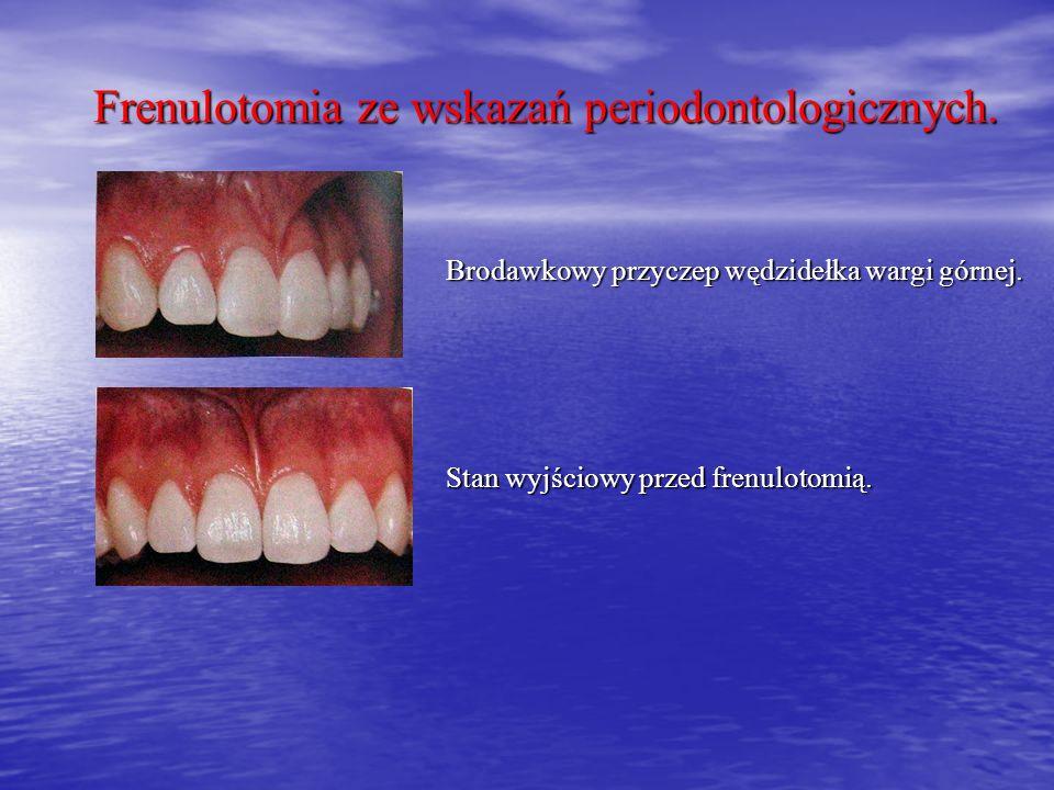 Frenulotomia ze wskazań periodontologicznych.