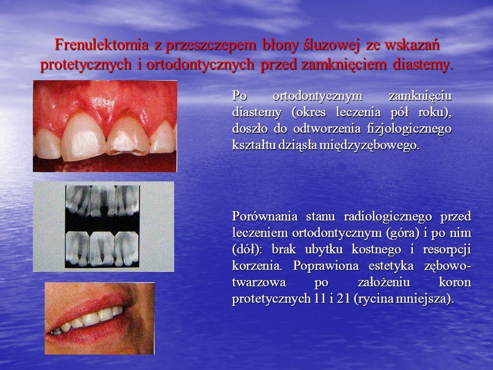 Frenulektomia z przeszczepem błony śluzowej ze wskazań protetycznych i ortodontycznych przed zamknięciem diastemy.