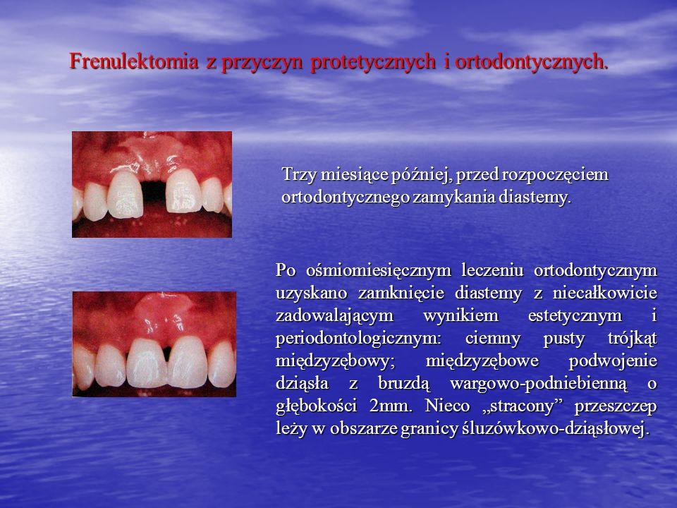 Frenulektomia z przyczyn protetycznych i ortodontycznych.