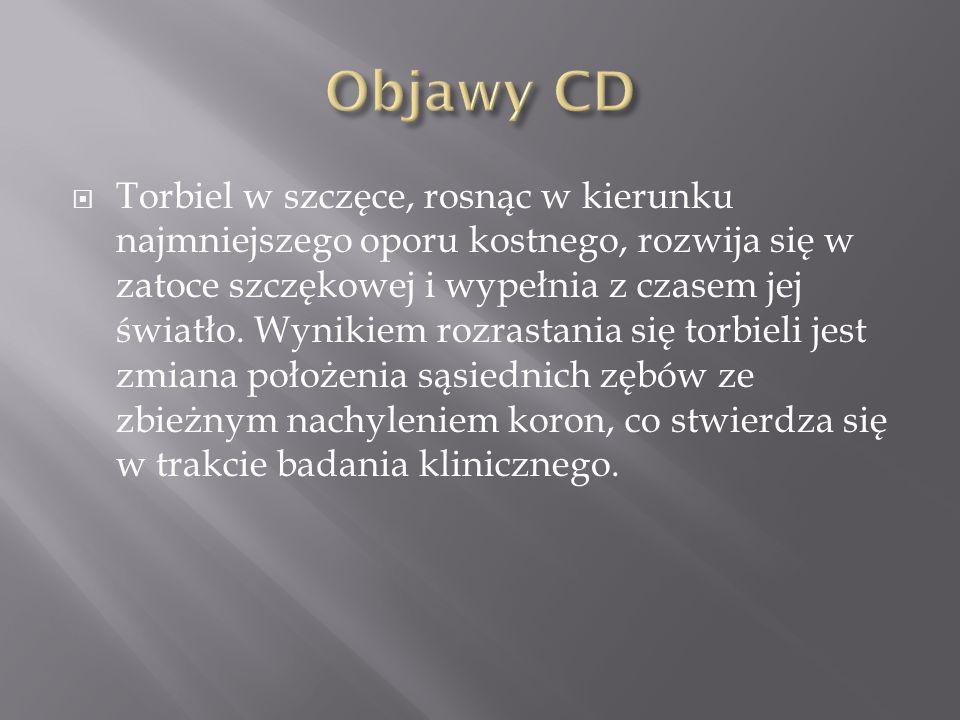Objawy CD