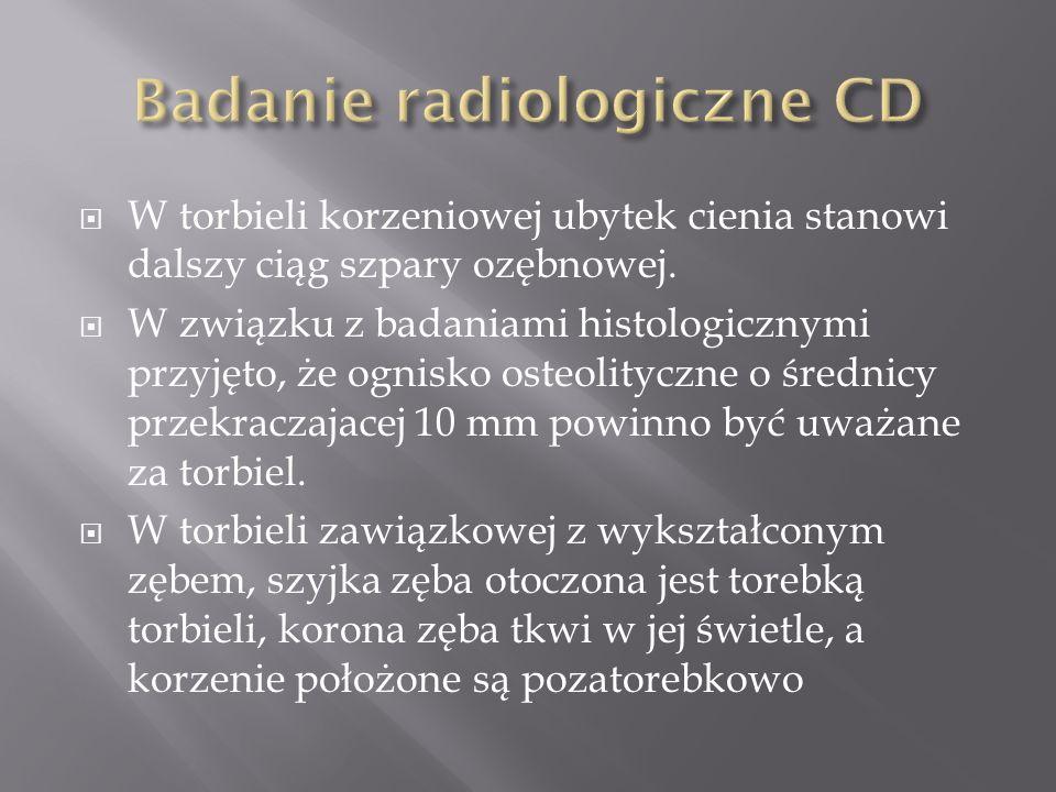 Badanie radiologiczne CD