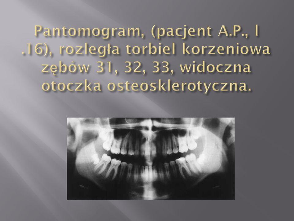 Pantomogram, (pacjent A. P. , l