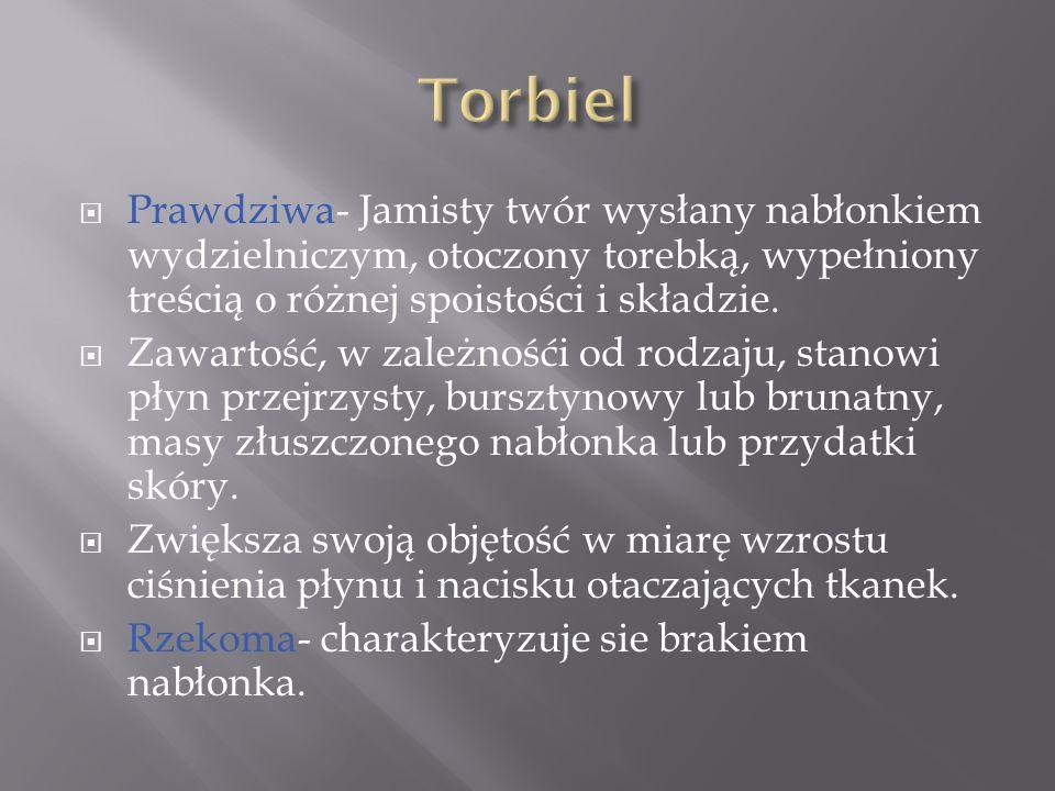 Torbiel Prawdziwa- Jamisty twór wysłany nabłonkiem wydzielniczym, otoczony torebką, wypełniony treścią o różnej spoistości i składzie.