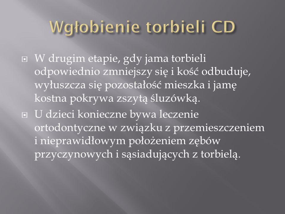 Wgłobienie torbieli CD