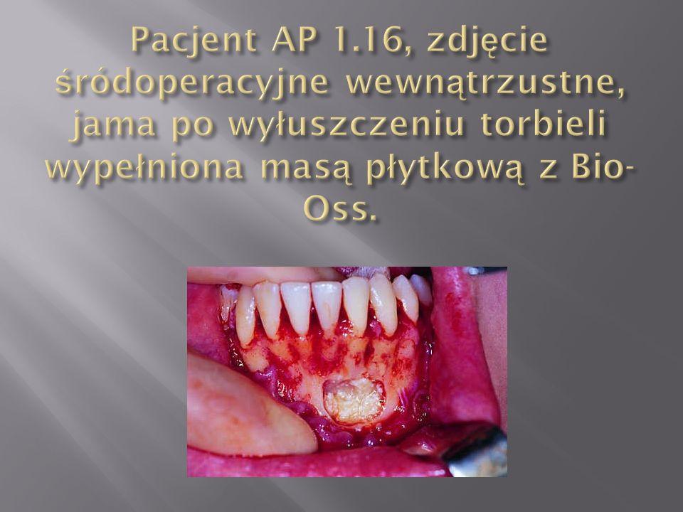 Pacjent AP 1.16, zdjęcie śródoperacyjne wewnątrzustne, jama po wyłuszczeniu torbieli wypełniona masą płytkową z Bio-Oss.