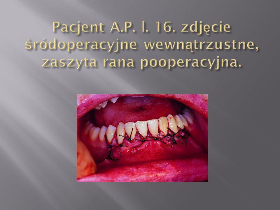 Pacjent A.P. l. 16. zdjęcie śródoperacyjne wewnątrzustne, zaszyta rana pooperacyjna.