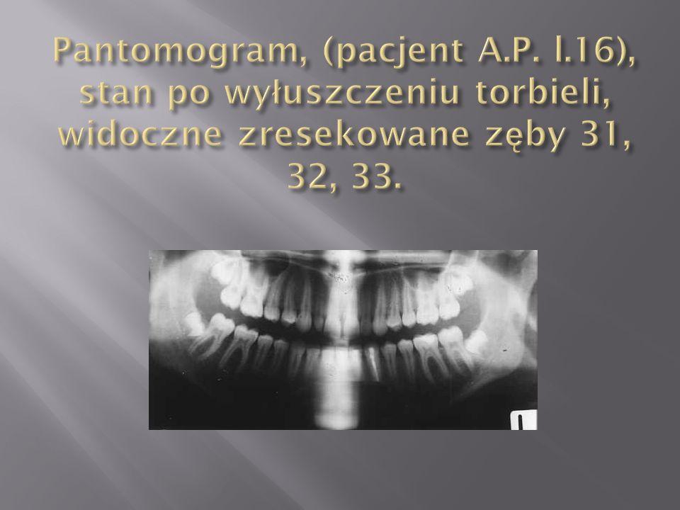 Pantomogram, (pacjent A. P. l