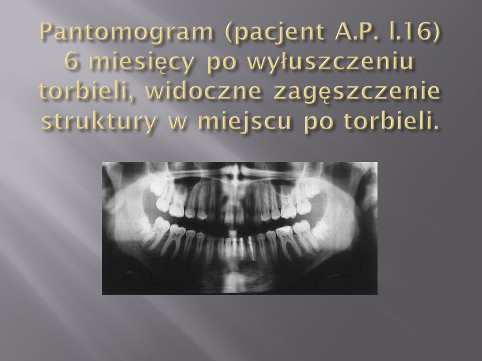Pantomogram (pacjent A. P. l