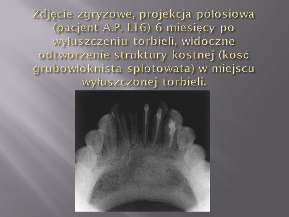 Zdjęcie zgryzowe, projekcja półosiowa (pacjent A. P. l